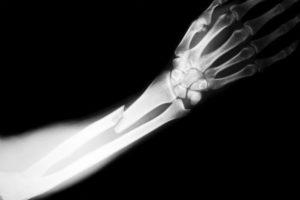 Czy wiesz, że CBD może leczyć złamane kości?, GrubyLoL.com